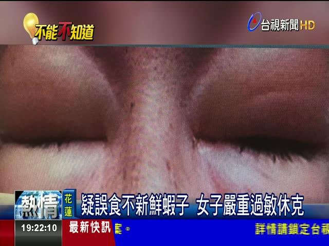 疑誤食不新鮮蝦子 女子嚴重過敏休克 吃蝦後起紅疹.難呼吸 女眼嘴發紅腫脹