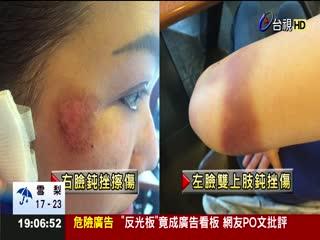 蕭亞軒姑醉失控被壓制拿受傷照淚控警