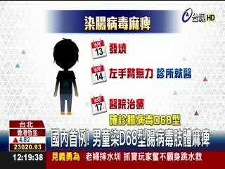 國內首例!男童染D68型腸病毒肢體麻痺