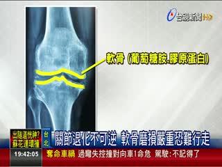 缺葡萄糖胺.膠原蛋白膝蓋恐退化.發炎