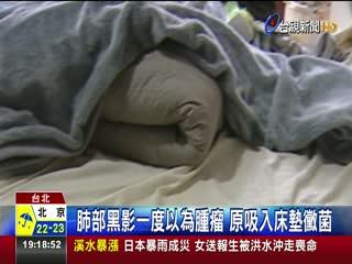 10年潮濕床墊惹禍男子肺部赫見黴塊