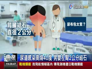 驚!尿布包太緊10月大男嬰罹患腎結石