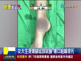 機車排氣管燙傷腳拖一週就醫傷口化膿