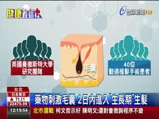 禿頭救星!骨質疏鬆藥可促進頭髮生長
