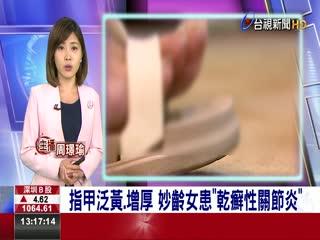 指甲泛黃.增厚妙齡女患乾癬性關節炎